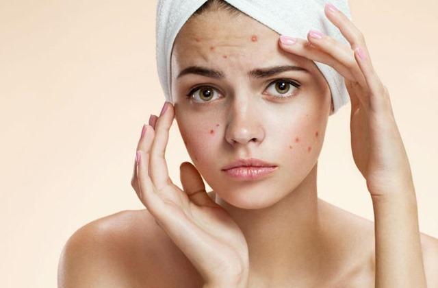acne-juvenil1